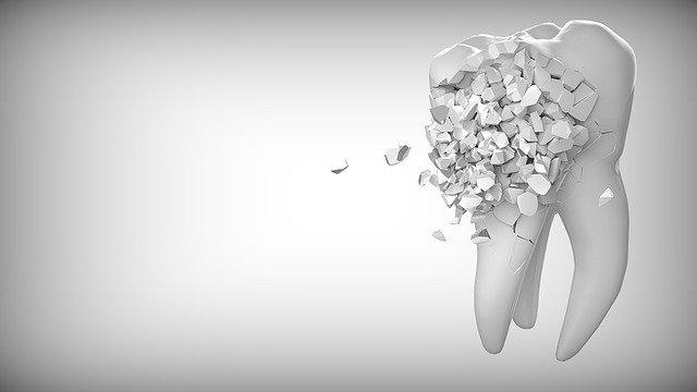 базални зъбни импланти